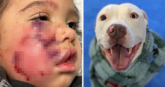 Dog To Be Euthanized After Owner Flees Scene Of Bite On Toddler